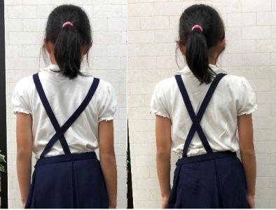 左右の肩の高さが違う(右肩下がり)